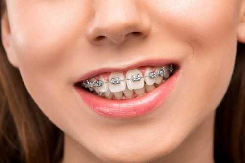 什麽是年輕恒牙?
