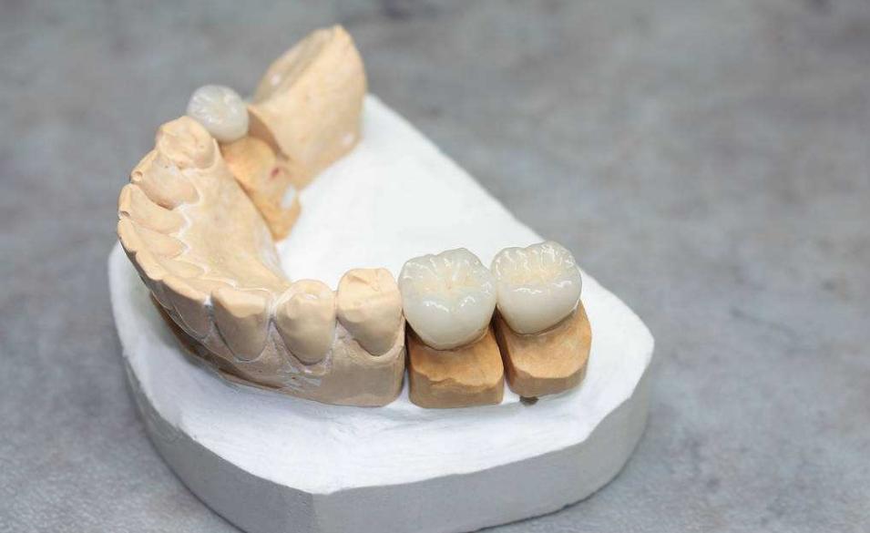 牙石危害同牙石預防