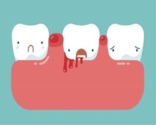 牙齦炎點算