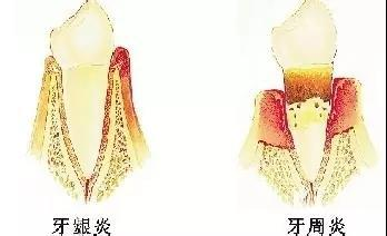牙齦炎同牙周炎區別