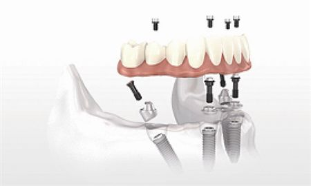 How much does Zhuhai half-port dental implant cost?