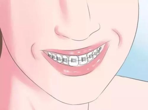 牙齒矯正丑丑的虎牙能拔除嗎?