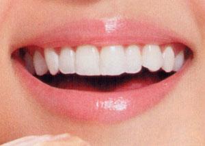 如何選擇最適合自己的口腔治療方案?