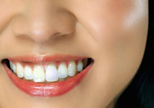 怎樣知道自己的牙周是否有問題呢?
