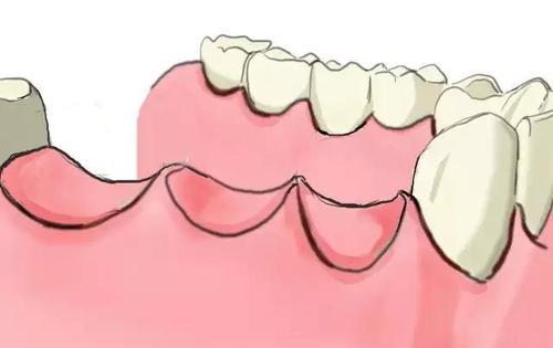 正畸治療時爲什麽會出現牙齒疼痛
