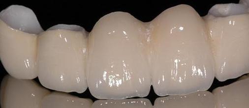 牙齒與糖尿病(1)